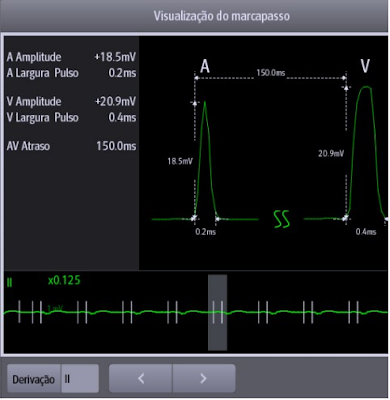 PACEVIEW (SOFTWARE SILENCE)